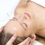 L'acupuncture au service de la femme