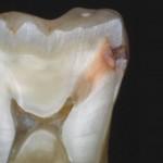 La nutrition et les caries dentaires