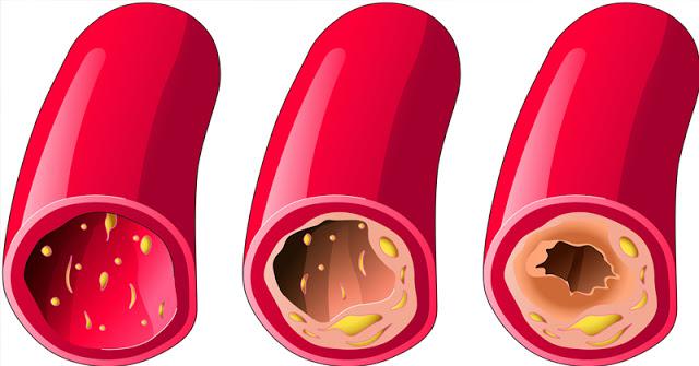 Ces 3 ingrédients vont nettoyer vos artères