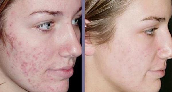 Extrêmement Retirer les cicatrices d'acné pour toujours avec cette formule  GM38