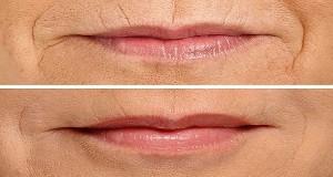 Voici comment lisser les lignes autour de vos lèvres en seulement 3 minutes (vidéo)
