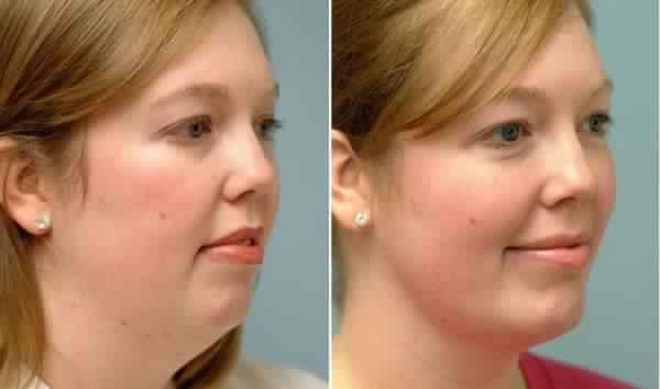 Assez Des exercices incroyables afin de resserrer votre peau et vous  AD32