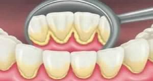 5 Recettes simples pour retirer naturellement la plaque dentaire